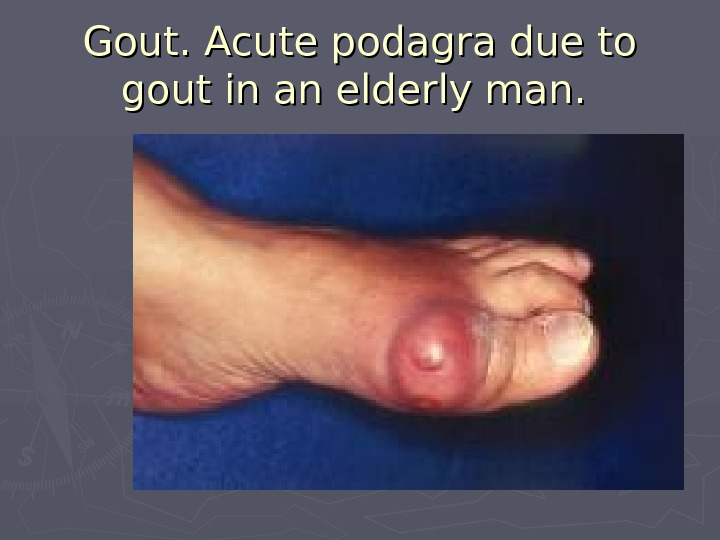 Gout. Acute podagra due to gout in an elderly man.