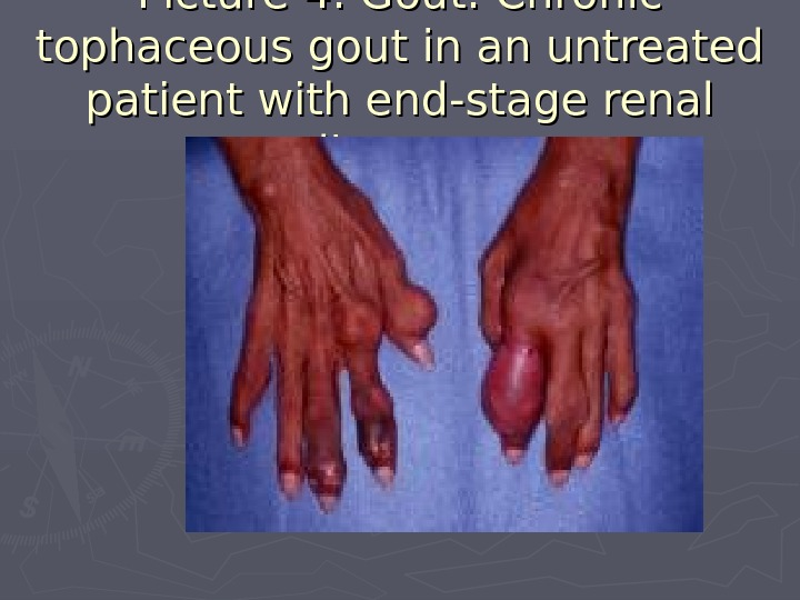 Picture 4. Gout. Chronic tophaceous gout in an untreated patient with end-stage renal disease.