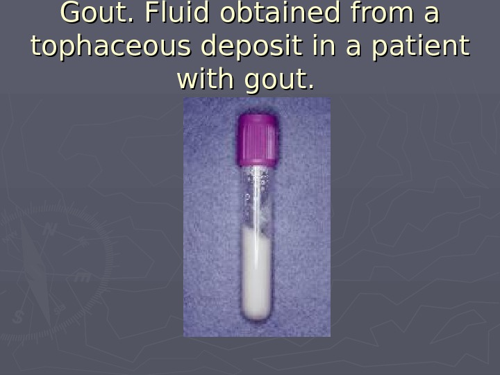 Gout. Fluid obtained from a tophaceous deposit in a patient with gout.