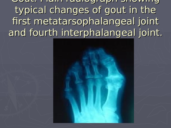 Gout. Plain radiograph showing typical changes of gout in the first metatarsophalangeal joint and