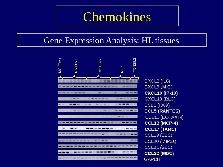 Gene Expression Analysis: HL tissues Chemokines CXCL 8 (IL 8) CXCL 9 (MIG) CXCL