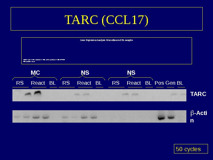 TARC (CCL 17) Gene Expression Analysis: Microdissected HL samples 30 RS cells  RNA