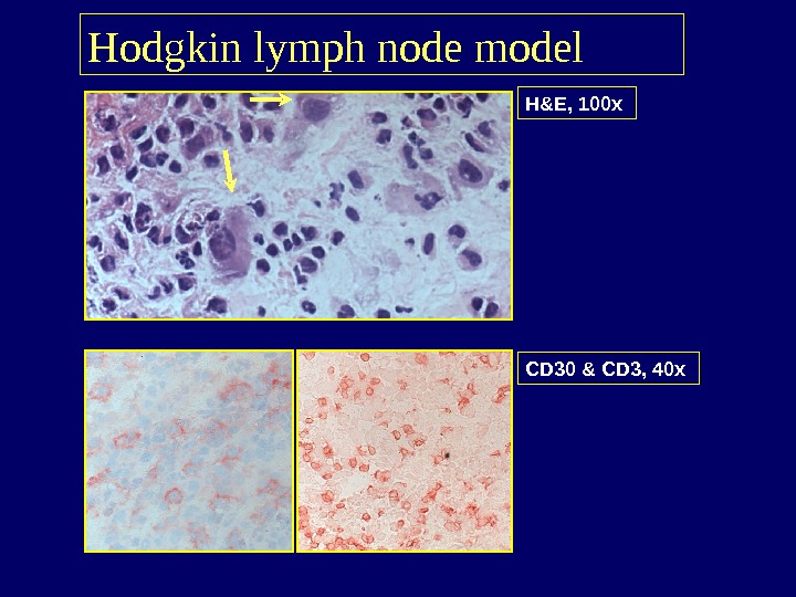 H&E, 100 x Hodgkin lymph node model CD 30 & CD 3, 40 x