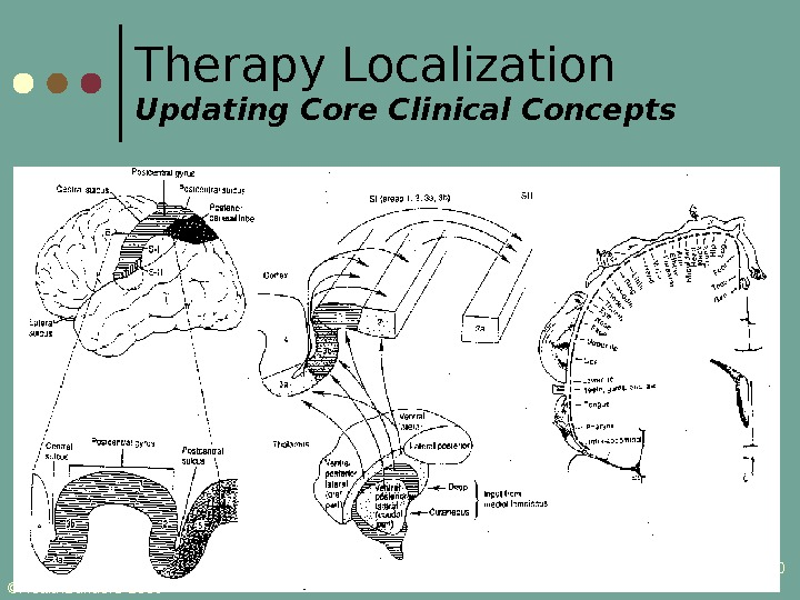 ©Health. Builder. S 2009 20 Therapy Localization Updating Core Clinical Concepts