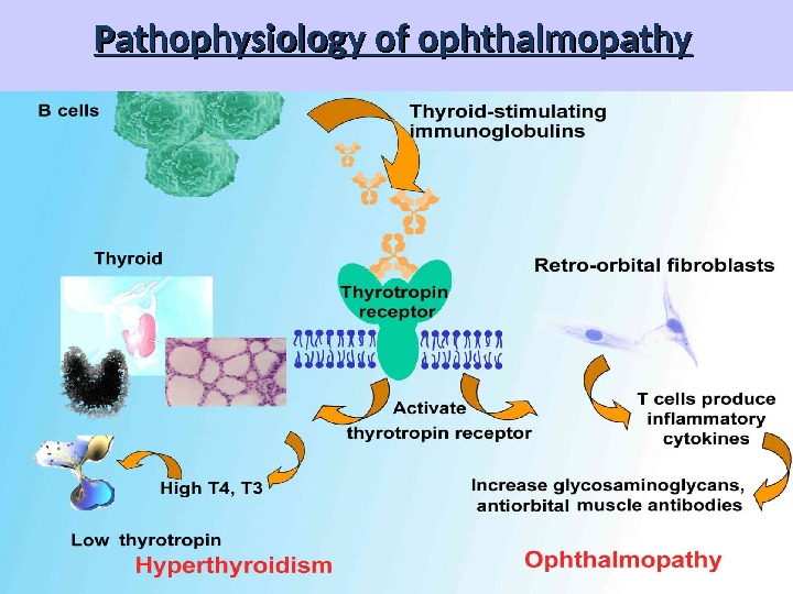 Pathophysiology of ophthalmopathy