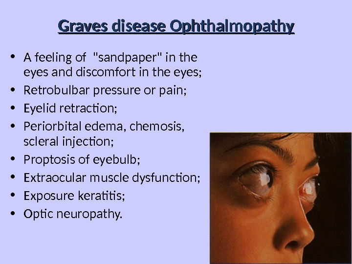 Graves disease Ophthalmopathy • A feeling of sandpaper in the eyes and discomfort in the eyes;
