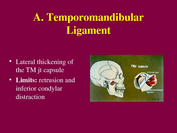 A. Temporomandibular Ligament • Lateralthickeningof the. TMjtcapsule • Limits: retrusionand inferiorcondylar distraction