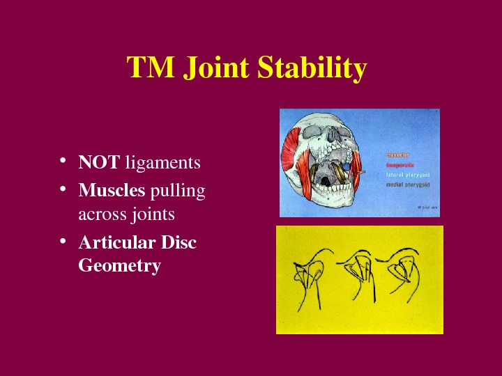 TMJoint. Stability • NOT ligaments • Muscles pulling acrossjoints • Articular. Disc Geometry
