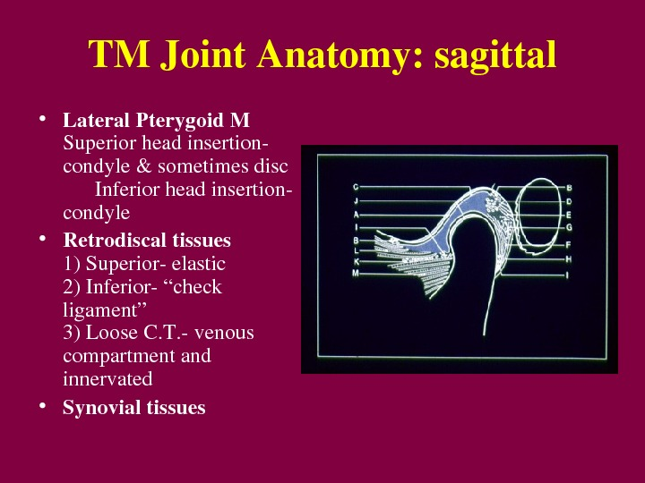 "TMJoint. Anatomy: sagittal • Lateral. Pterygoid. M Superiorheadinsertion condyle&sometimesdisc Inferiorheadinsertion condyle • Retrodiscaltissues 1)Superiorelastic 2)Inferior""check ligament"""