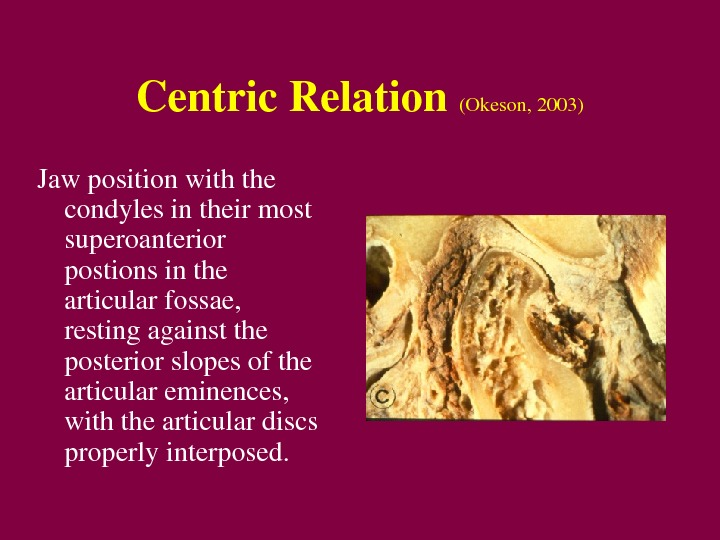 Centric. Relation (Okeson, 2003) Jawpositionwiththe condylesintheirmost superoanterior postionsinthe articularfossae, restingagainstthe posteriorslopesofthe articulareminences, withthearticulardiscs properlyinterposed.