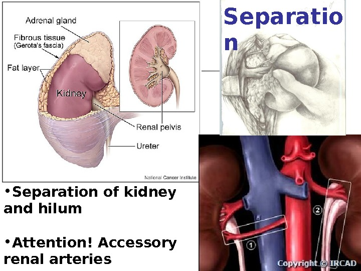 • Separation of kidney and hilum • Attention! Accessory renal arteries Separatio n