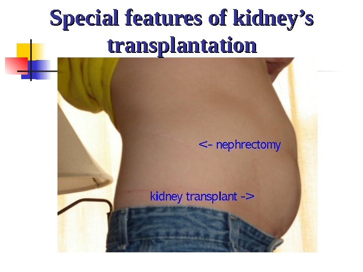 Special features of kidney's transplantation