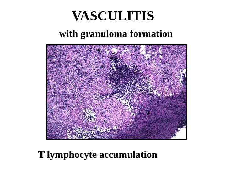 VASCULITIS  with granuloma formation   T lymphocyte accumulation