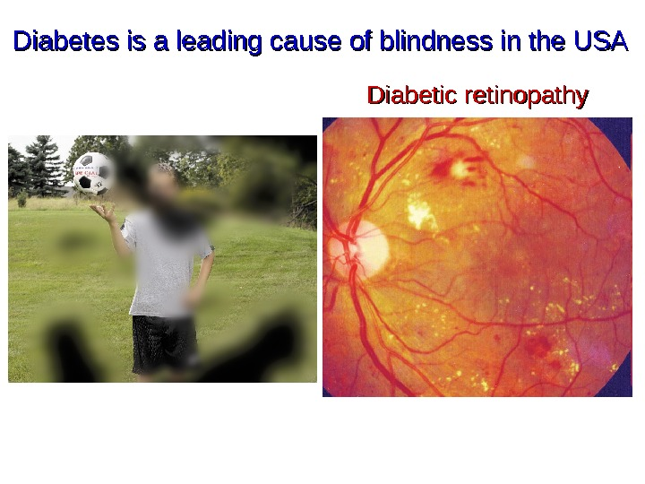 Diabetes is a leading cause of blindness in the USA Diabetic retinopathy