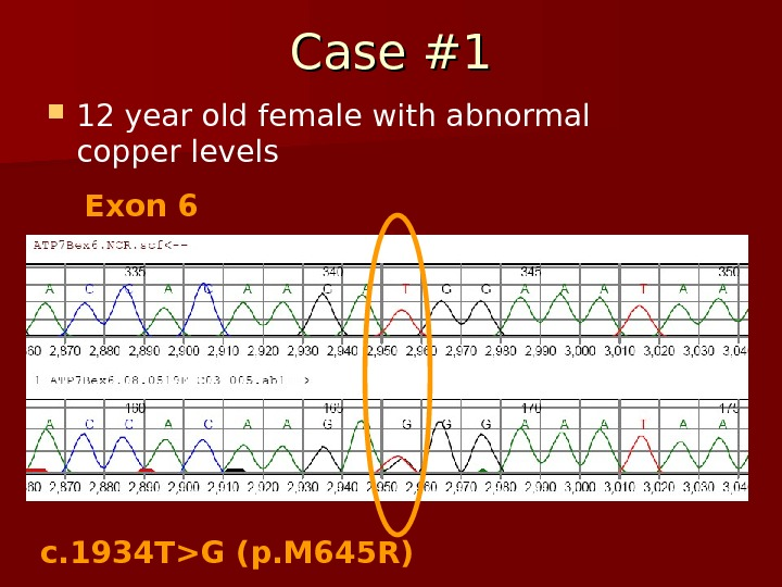Case #1 12 year old female with abnormal copper levels Exon 6 c. 1934 TG (p.