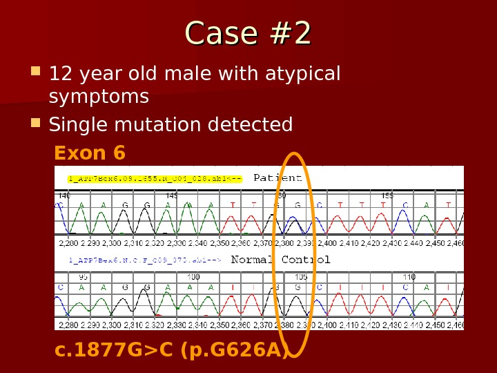 Case #2 12 year old male with atypical symptoms Single mutation detected Exon 6 c. 1877