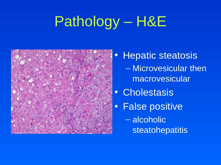 Pathology – H&E • Hepatic steatosis – Microvesicular then macrovesicular • Cholestasis  • False positive