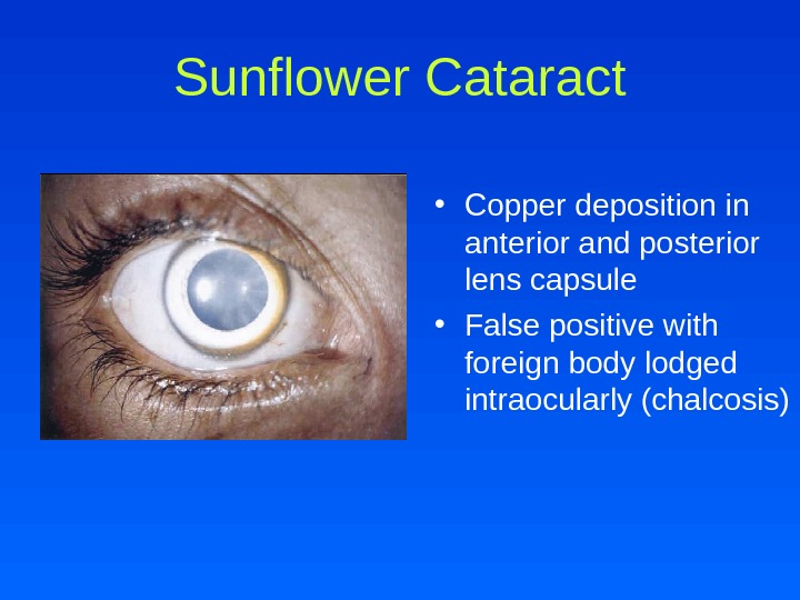 Sunflower Cataract • Copper deposition in anterior and posterior lens capsule • False positive with foreign