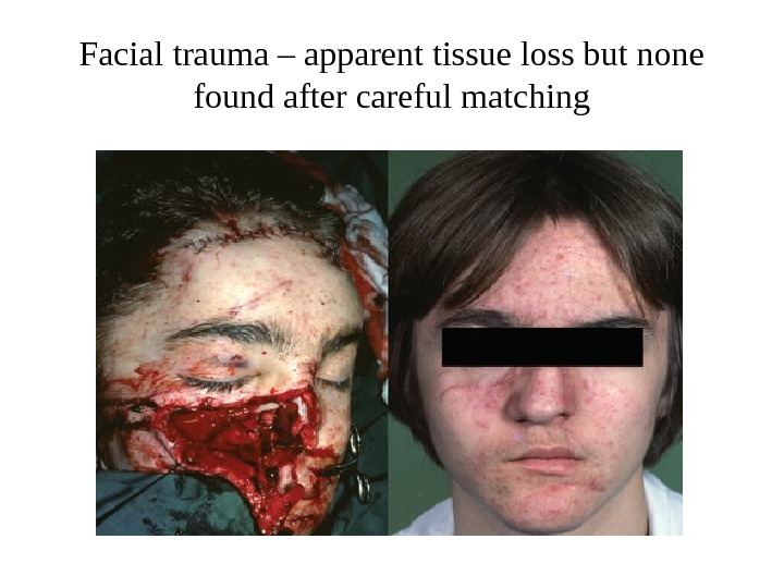 Facial trauma – apparent tissue loss but none found after careful matching