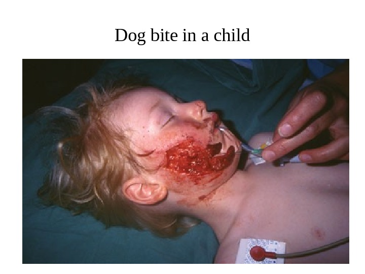 Dog bite in a child