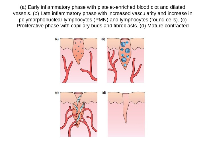 (a) Early inflammatory phase with platelet-enriched blood clot and dilated vessels. (b) Late inflammatory phase with