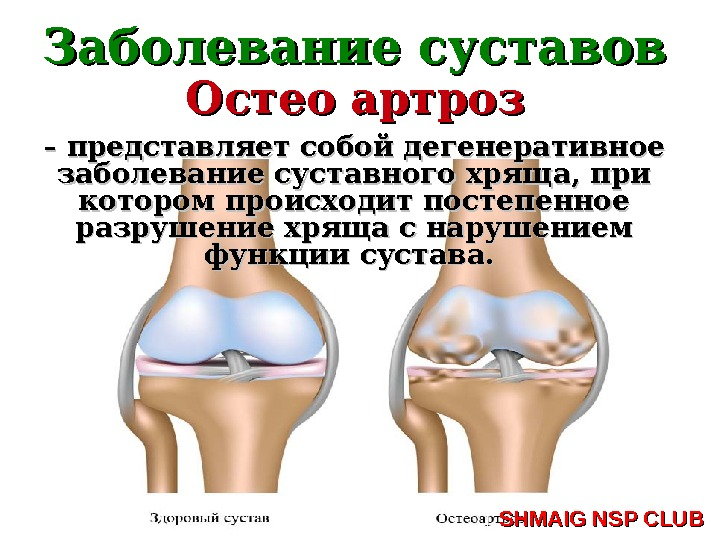 артроз суставов лечение в домашних