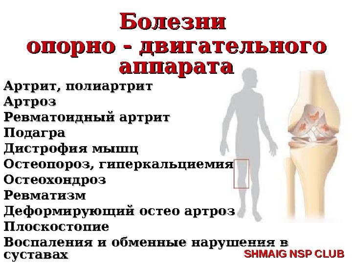 лечение суставов в чехии.где