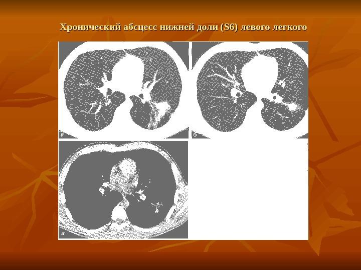 График абсцедирующая пневмония код мкб нас можете
