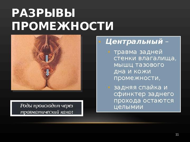 chastnoe-lyubitelskoe-russkoe-gruppovogo-seksa-s-zhenshinoy