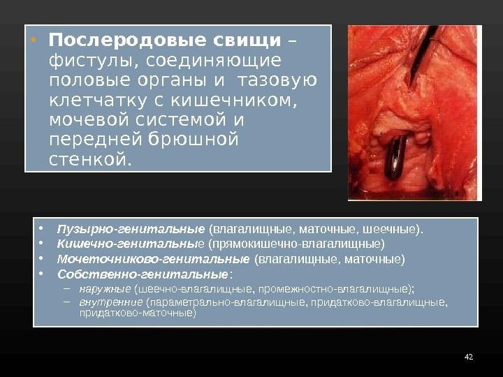 vlagalishniy-pryamokishechniy-svish