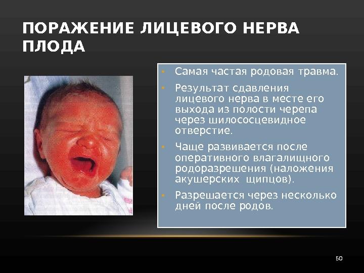 работает частным внутричерепное кровоизлияние новорожденных лечение платье