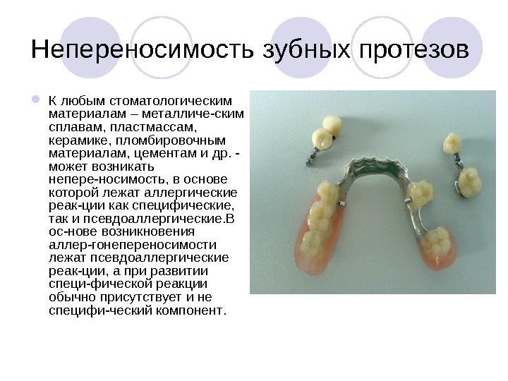 аллергия в стоматологии