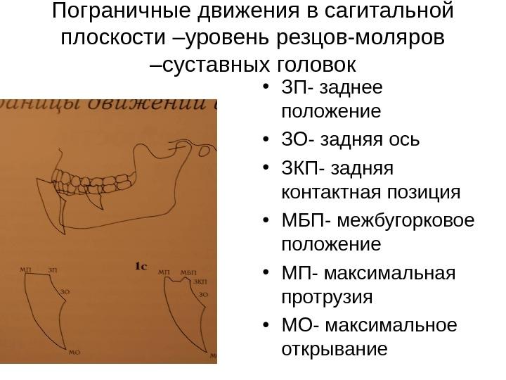 mezhbugorkovoe-sinovialnoe-vlagalishe