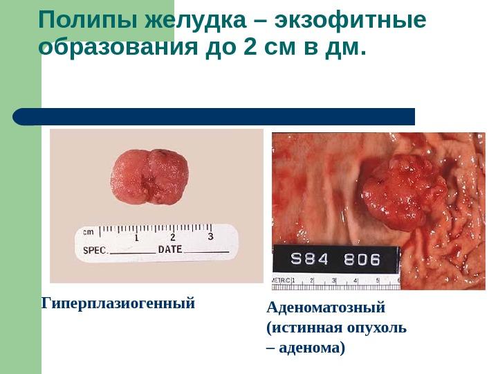 Презентация Болезни пищевода желудка и 12-перстной кишки