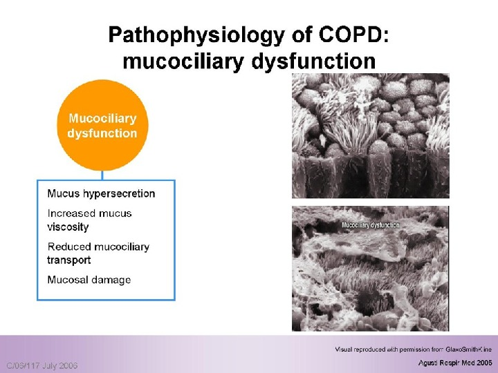 the pathophysiology of a disease copd Chronic obstructive pulmonary disease, or copd, is an ongoing lung disorder that makes it hard to breathe the main cause is smoking, but you don't have to be a smoker to get it there can be.