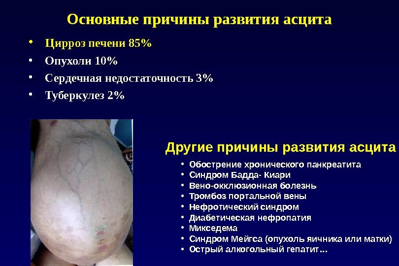 Печень при беременности цирроз