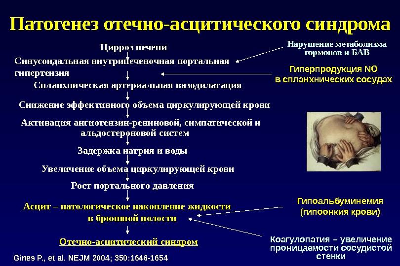 Пять основных патологических синдромов поражения печени: