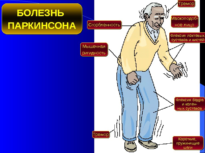 Болезнь паркинсона симптомы фото