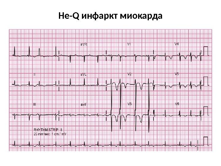 Обиженно доказательное проявление атеросклероза - ядовитый инфаркт миокарда