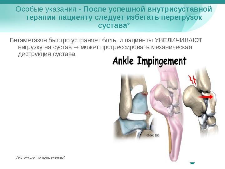 боли в мягких тканях тазобедренного сустава
