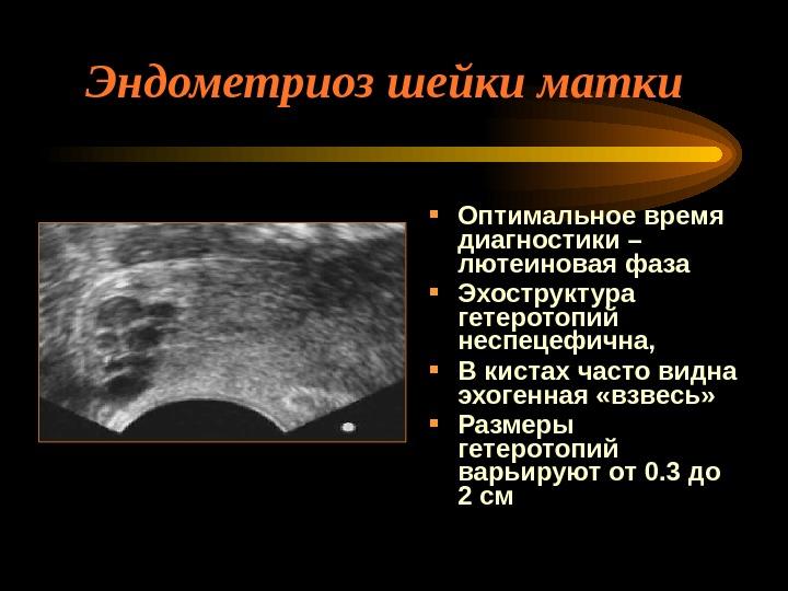 Эндометриоз и эндометриоидная киста