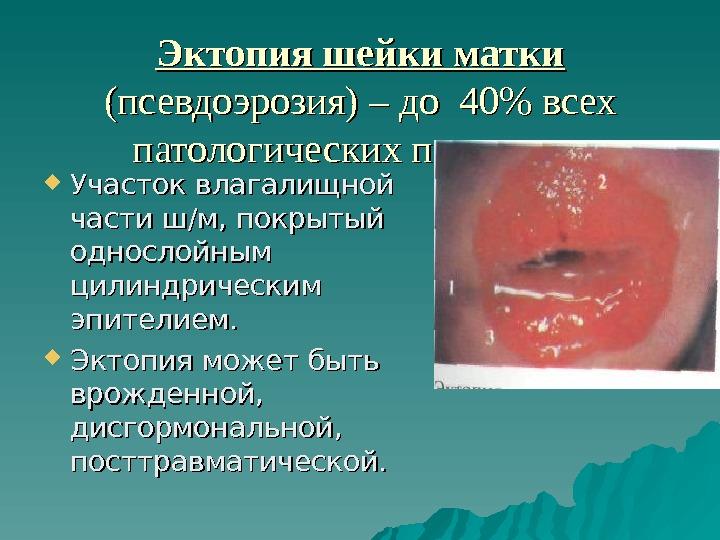 biopsiya-opuholi-vlagalisha