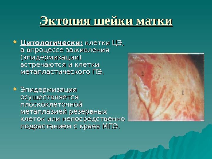 Презентация ФОНОВЫЕ И ПРЕДРАКОВЫЕ ЗАБЛЕВАНИЯ ШЕЙКИ МАТКИ