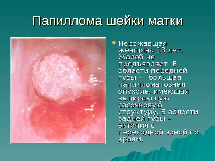Вирус папилломы анализы до месячных фото