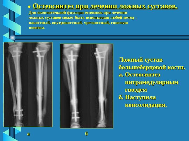 общая клиника несросшихся переломов и ложных суставов