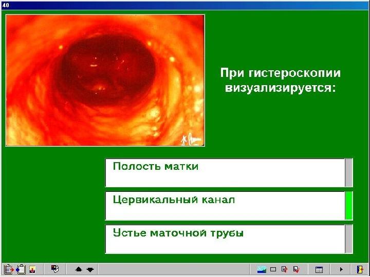 Устья маточных труб визуализируются на гистероскопии что это