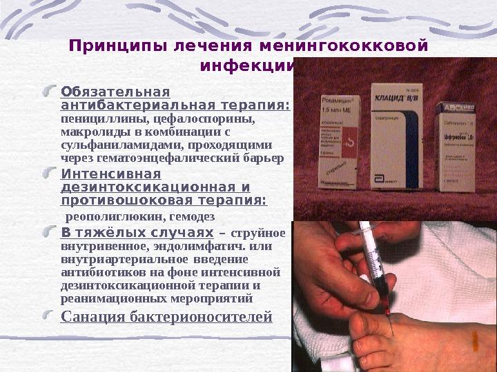 где можно купить виниры в украине