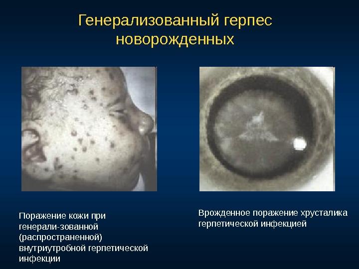 Герпетическая инфекция беременность Коллекция изображений