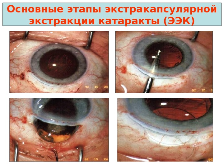 Рисунок 4 травма кошачьим когтем у йорка, травматическая катаракта