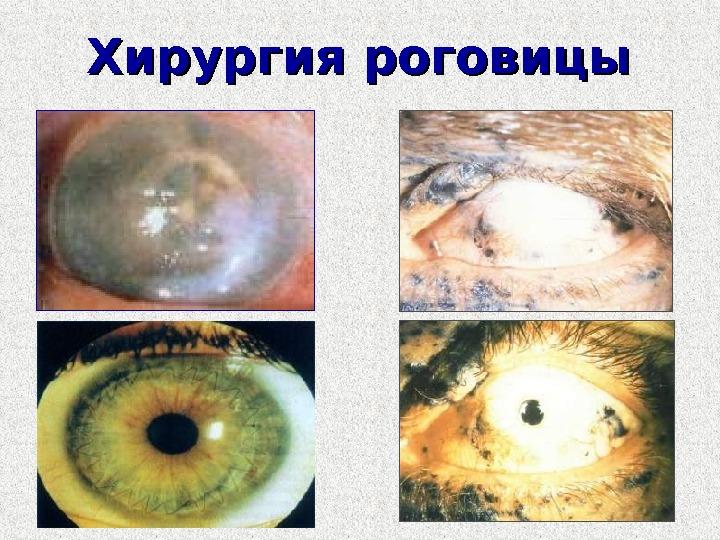 Коррекция зрения сколько стоит в саратове
